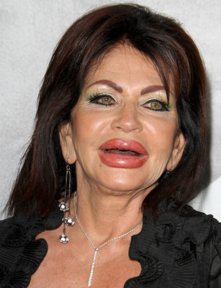 Jackie Stallone, surgery